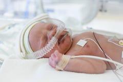 Beeld van de voorbarige baby in incubator stock foto's
