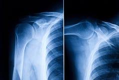 De röntgenstraal van de schouder royalty-vrije stock afbeelding