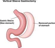 Beeldverhaalillustratie van Verticale Koker Gastrectomy (VSG) Royalty-vrije Stock Afbeeldingen