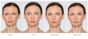 Before And After Anti-age Concept Stock Photo