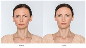 Before And After Anti-age Concept Stock Photos