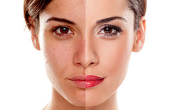Free Before And After Makeup Stock Photo - 56454810