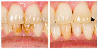 Beforeafter Plaque Removal Royalty Free Stock Photo