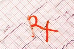 Begrepp av diagnosen och behandling av hjärta och den kärl- sjukdomen Arkivfoto