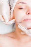 Begrepp av medicinsk behandling av föryngring och skincare Royaltyfria Foton