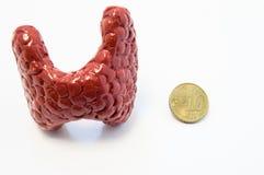 Begrepp av visualization av den förstorade sköldkörteln i olika sjukdomar, liksom struma, thyroiditis, nodul Anatomisk modell av  Fotografering för Bildbyråer