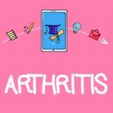 Begreppsmässig artrit för handhandstilvisning Sjukdom för affärsfototext orsaka smärtsam inflammation och styvhet av skarvarna royaltyfri illustrationer