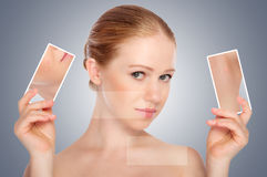 Begreppsskincare. Flå av ung kvinna för skönhet med acne royaltyfri fotografi