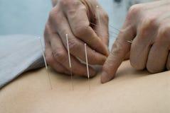 Behandeling door acupunctuur stock afbeelding