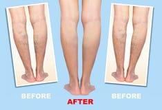 Behandeling van varikeus vóór en na Spataders op de benen vector illustratie
