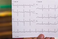 Behandeln Sie das Betrachten des Elektrokardiogramms des Patienten in der Unfallstation stockbilder