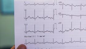 Behandeln Sie das Betrachten des Elektrokardiogramms des Patienten in der Unfallstation stockfotos