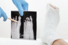 Behandeln Sie das Zeigen des geduldigen Röntgenstrahlbildes eines gebrochenen Fingers, das Gipsbein, das auf der Couch, auf Weiß  Lizenzfreie Stockbilder
