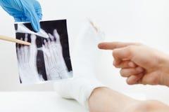 Behandeln Sie das Zeigen des geduldigen Röntgenstrahlbildes eines gebrochenen Fingers, das Gipsbein, das auf der Couch, auf Weiß  Lizenzfreie Stockfotos