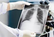 Behandeln Sie die Untersuchung einer Lungenradiographie, Doktor, der Kastenröntgenfilm schaut stockbild