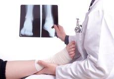 Behandeln Sie Prüfung eine Röntgenstrahlbild des verstauchten Fußes Lizenzfreie Stockfotografie