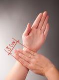 Behandla med akupunktur 3 CUN Arkivbild
