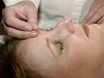 behandla med akupunktur begreppet Arkivbilder