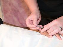 Behandla med akupunktur begreppet arkivbild