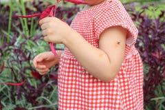 Behandla som ett barn flickan har överilat och allergi för hud från myggatugga och sugablod, medan att spela som är utomhus- royaltyfria bilder