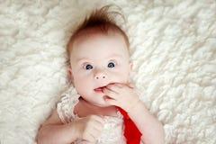Behandla som ett barn lite flickan med besegrar syndrom Fotografering för Bildbyråer