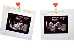 behandla som ett barn ultrasounden Arkivfoto