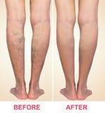 Behandling av åderbråcks före och efter Åderbråcks åder på benen fotografering för bildbyråer