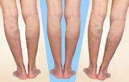 Behandling av åderbråcks före och efter Åderbråcks åder på benen arkivfoton