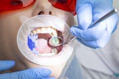 Behandling av tandförfall flickan på mottagandet på tandläkaren som doktorn borrade en tandboronmaskin, tog bort karies tanden är arkivfoton
