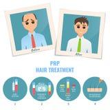 Behandling för man före och efter PRP stock illustrationer