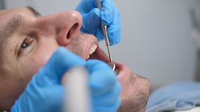 Behandling för manligt tålmodigt häleri för närbild tand- stock video
