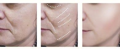Behandlingar för föryngring för kirurg för behandling för cosmetology för kvinnaskrynklor knövlar före och efter royaltyfria foton