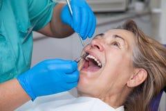 Behandlung der Zahnfleischentzündung am Zahnarzt Lizenzfreies Stockfoto