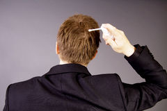 Behandlung des Haarverlustes Lizenzfreie Stockfotos