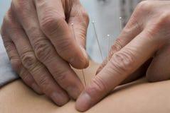 Behandlung durch Akupunktur lizenzfreie stockfotografie