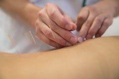 Behandlung durch Akupunktur Stockbild