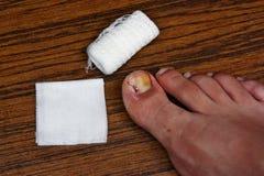 Behandlung nach dem Abbau des ingrown Zehennagels Stockfotos
