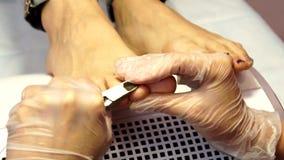 Behandlung von ingrown Zehennägeln Ingrown Nagel Der Doktor ist eine Fußarzt Hardware-Pediküre podiatry stock video footage