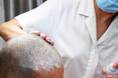 Behandlung von Kahlheit mit Schönheitseinspritzungen lizenzfreies stockfoto