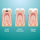 Behandlung von Karies Zahnmedizinische Füllung Zahnkaries einzeln aufgeführt lokalisiert auf einem Hintergrund Auch im corel abge lizenzfreie abbildung