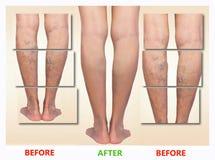 Behandlung von varikösem vorher und nachher Krampfadern auf den Beinen lizenzfreies stockfoto