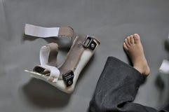 Behinderte Kinder. Stockfoto