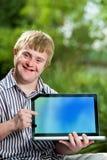 Behinderter Junge, der auf leeren Laptopschirm zeigt Stockbilder