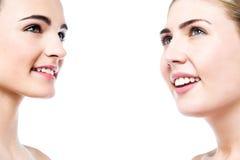 Bei fronti delle donne con pelle pulita Fotografia Stock