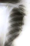 Beide Filmröntgenstrahlshow Lunge Lizenzfreie Stockfotos