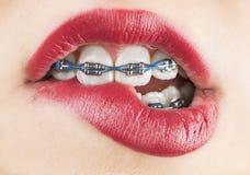 Beißende Lippe des Mädchens Lizenzfreies Stockfoto