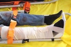 Bein mit Schiene Stockfotos