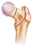 Bein - Schenkelbein-Brüche stock abbildung