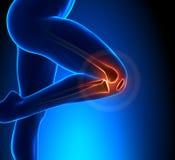 Knie-Schmerz-Vorgesetzt-Ansicht stock abbildung