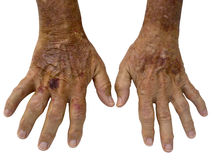 Bejaarde handen met Reumatoïde Artritis Royalty-vrije Stock Afbeeldingen